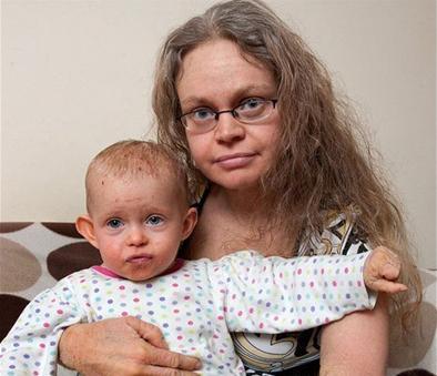 梅勒妮·布拉德利和女儿丽贝卡都患上了这种罕见疾病(网页截图)