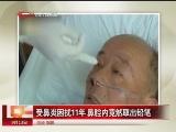 <a href=http://news.cntv.cn/society/20110913/105683.shtml target=_blank>[汇说天下]受鼻炎困扰11年 鼻腔内竟然取出铅笔</a>
