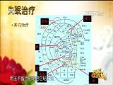 """失眠之""""患"""" 名医大讲堂 2017.06.20 - 厦门电视台 00:29:10"""