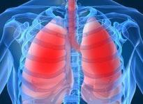 不可忽视慢性肺部疾病