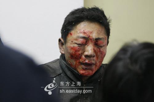 上海南汇区爆炸中一名伤者满脸是血(东方网 图)