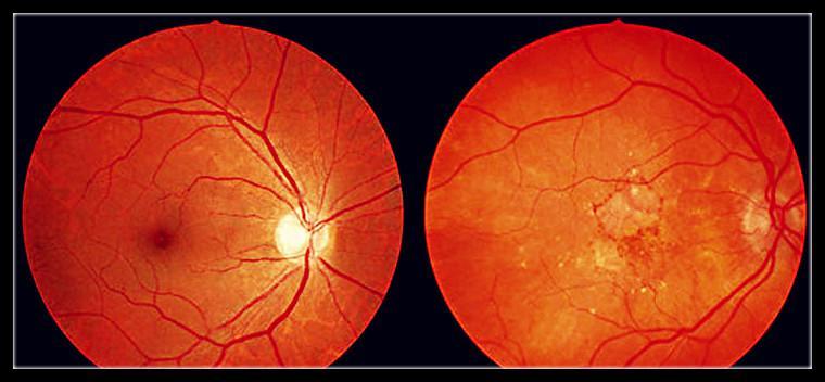 图为眼球黄斑部受到强光刺激后的变化图。