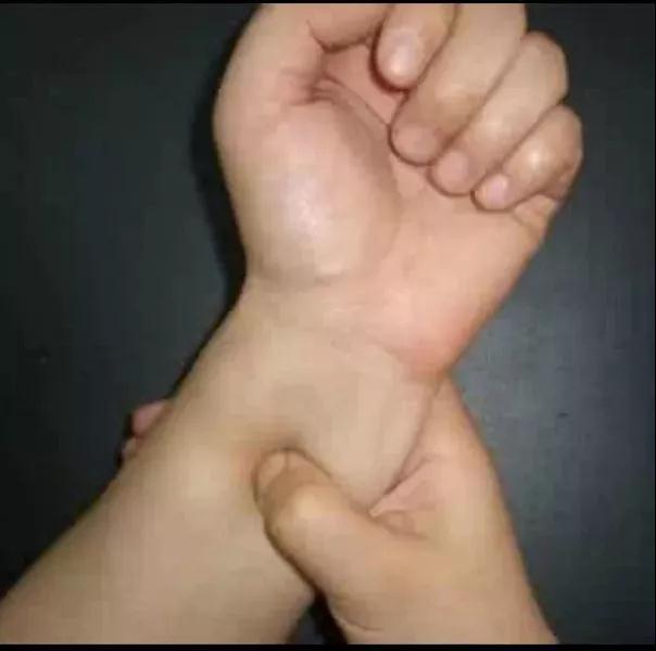 贺星龙使用的不停掐压病人内关穴救人的中医手法