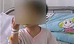 1岁宝宝吃春笋致肠穿孔