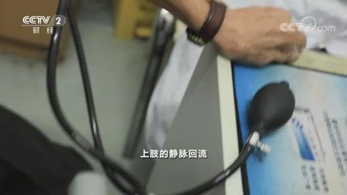 [是真的吗]手背青筋暴起说明肝不好?