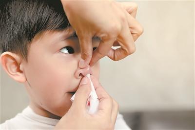 止血 鼻 法 出血 鼻血が止まらないときに自分でできる対処法と病院で行う鼻血の治療